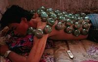 MEDICINE CAMBODGIA<BR>Photo essay.<BR>Traditional medicine in Phnom Penh, Cambodia. Cupping therapy.