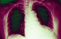 CARDIOMEGALY, X-RAY<BR>Cardiomegaly is an enlargement of the heart due to dilatation of the heart cavities. This can result from many conditions inclu...