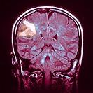 NMR CEREBRAL LYMPHOMA<BR>MRI image of cerebral lymphoma in a 46 year old woman.