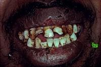 Closeup of man´s dirty teeth