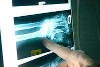 Emergency Room X-ray