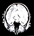 a tomography of the brain