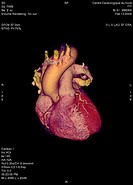 HEART, 3D SCAN Angiography scanner 3D. Superficial view of the heart anterior : atria and ventricles, aortic arch, pulmonary trunk and coronary arteri...