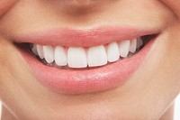 Woman´s open mouth perfect teeth