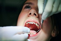 a teenager with braces having their mouth examined by the dentist