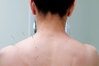 Acupuncture needles on a person´s back