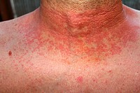 dermititis should be dermatitisRed skin rash on a man´s neck and chest due to scarlet fever, fever, dermatitis or eczema