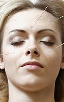 young woman getting acupuncture treatment, Germany