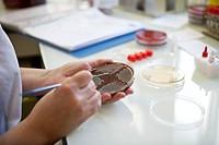 Photo essay at the hospital of la Croix Saint_Simon, Paris, France. Laboratory. Bacterial culture.