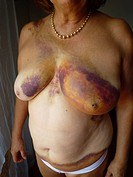 ELDERLY PERSON WITH HEMATOMA