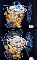 3D reconstruction of MRI images of a child brain.