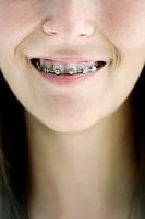 Girl with irons on teeth