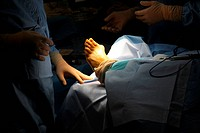 Reportage in the orthopedic surgery department at Saint Joseph hospital in Paris, France. Hallux valgus bunion operation.