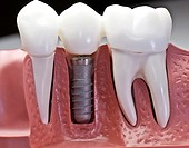 This model show the teeth have been capped and the stainless pin in the gums