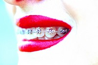 Close up of woman mouth with braces. . . .