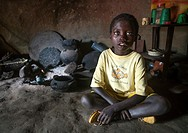 Ethiopia, Omo Valley, Jinka, ethiopian boy called abushe with blue eyes suffering from waardenburg syndrome.