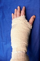 bandaged left hand after carpal tunnel injury surgery.